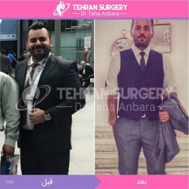 تصاویر قبل و بعد از جراحی چاقی
