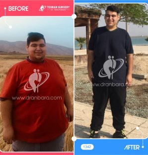 عکس قبل و بعد جراحی لاغری