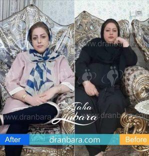 قبل و بعد از عمل چاقی