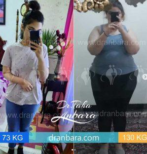 قبل و بعد از جراحی لاغری