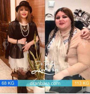 عکس قبل و بعد عمل چاقی
