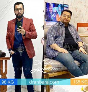 دکتر عنبرا عکس قبل و بعد عمل