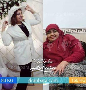 عکس قبل و بعد از عمل چاقی