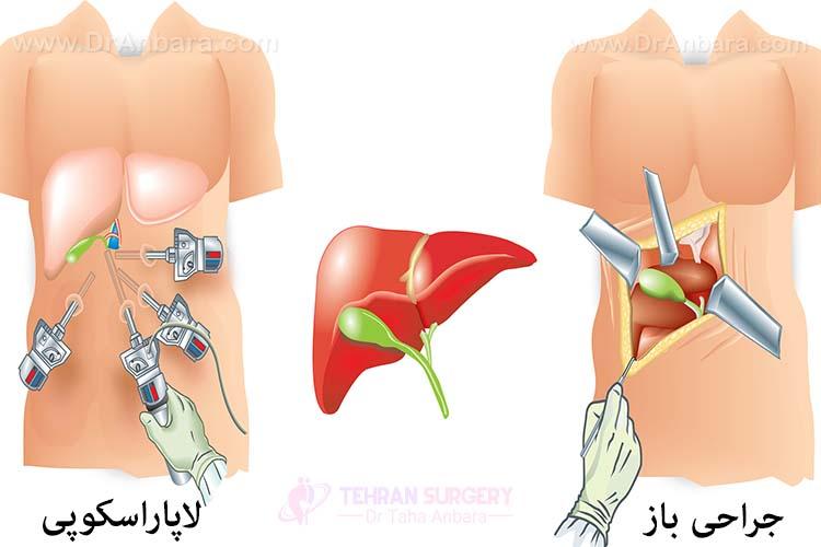جراحی لاپاراسکوپی در مقایسه با جراحی باز