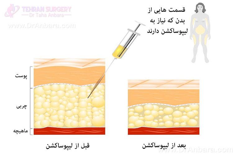 تصویر چربی های بدن قبل و بعد از جراحی لیپوساکشن