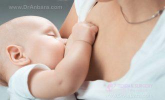 آیا شیردهی پس از پروتز سینه امکان پذیر است؟