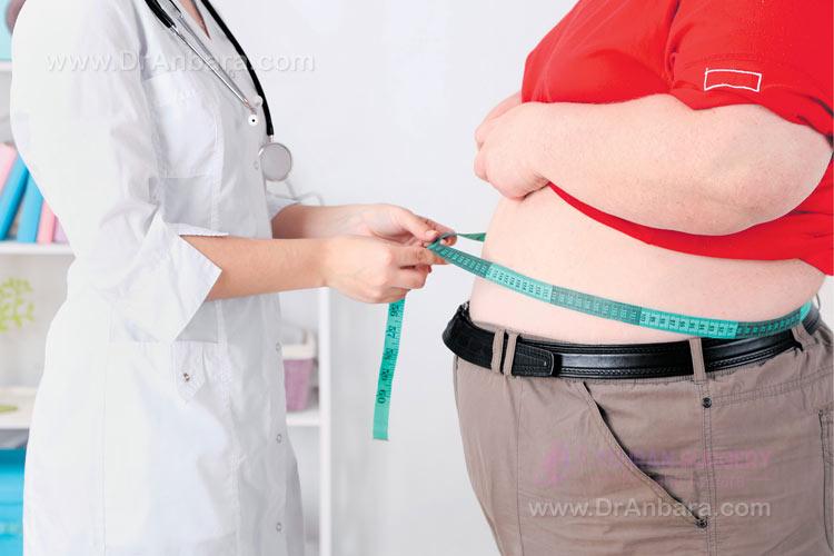 سرطان های مرتبط با چاقی