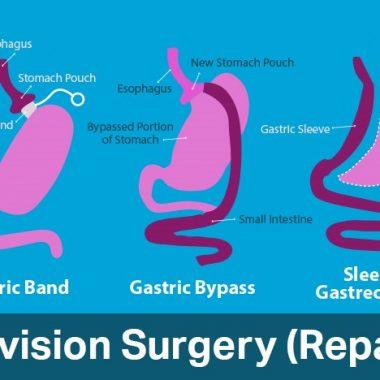 Revision bariatric surgery
