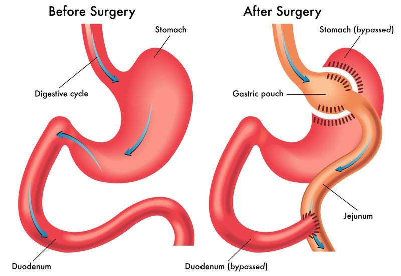 gastric bypass surgery - Dr. Taha Anbara Bariatric surgeon