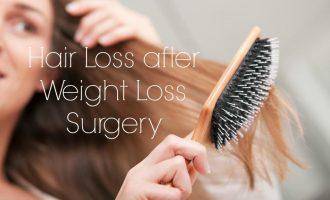 hair loss following weight loss surgery