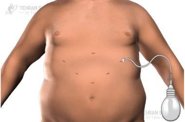 Sleeve surgery scars