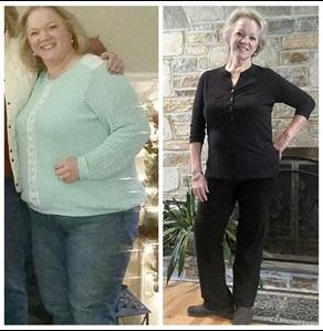 باربارا قبل و بعد از جراحی لاغری