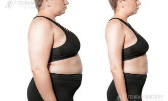 Weight loss surgery stories