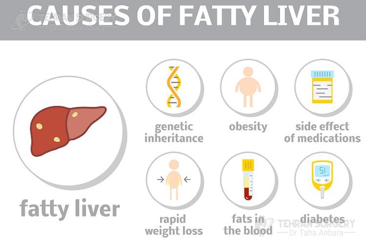 Fatty liver causes