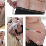 Obesity and sleep apnea