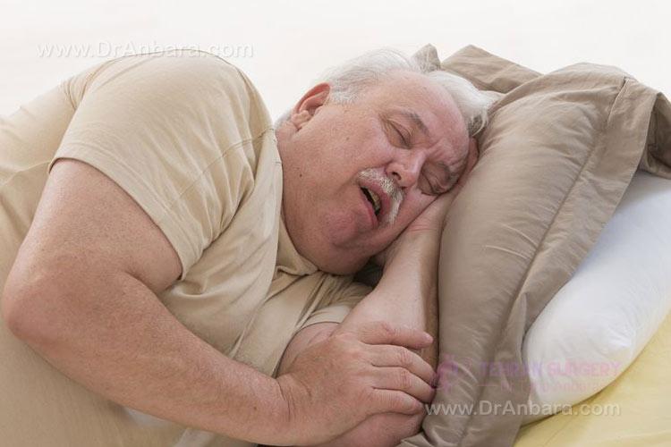 بهبود آپنه خواب با جراحی لاغری