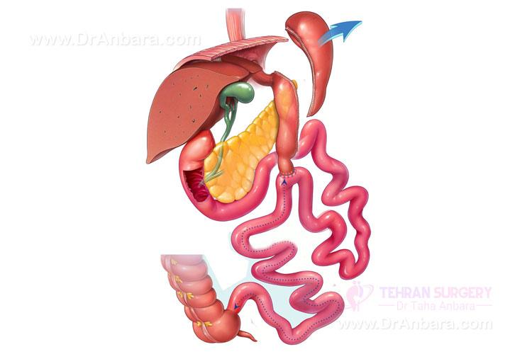کاهش وزن با عمل جراحی بای پس روده