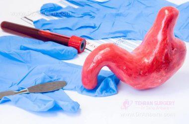 دوره نقاهت جراحی بای پس روده