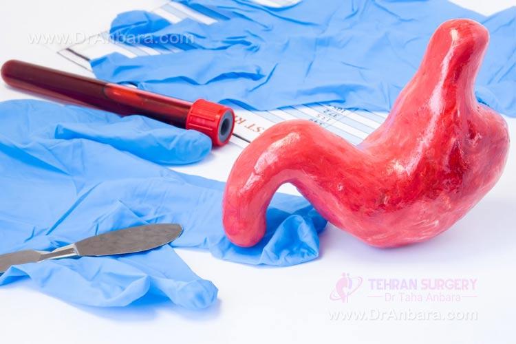 ریکاوری و دوره نقاهت پس از عمل جراحی بای پس روده