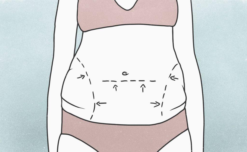 آویزان شدن پوست بعد از عمل جراحی  و لزوم عمل زیبایی بعد از آن