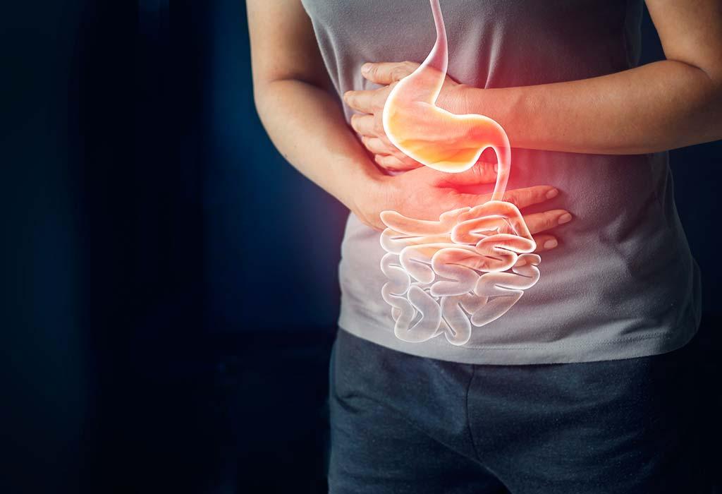 رفلاکس و اسید معده در افراد چاق