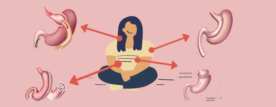 نوع چاقی و درمان آن با عمل لاغری