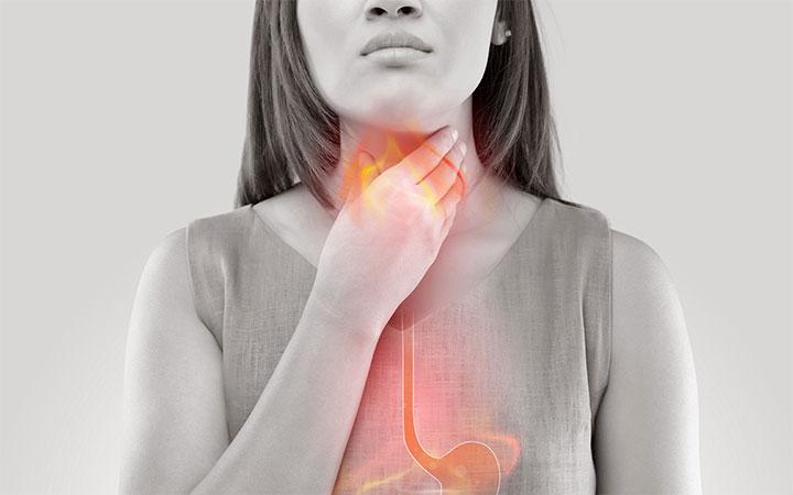 رفلاکس اسید یکی از بیماری های مرتبط با چاقی است