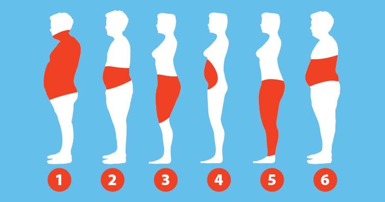 نوع چاقی بر اساس موقعیت چربی بدن