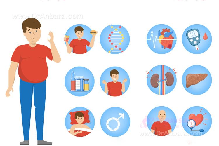 تصویری که ریسک فاکتورها و عوامل خطر چاقی را نشان می دهد