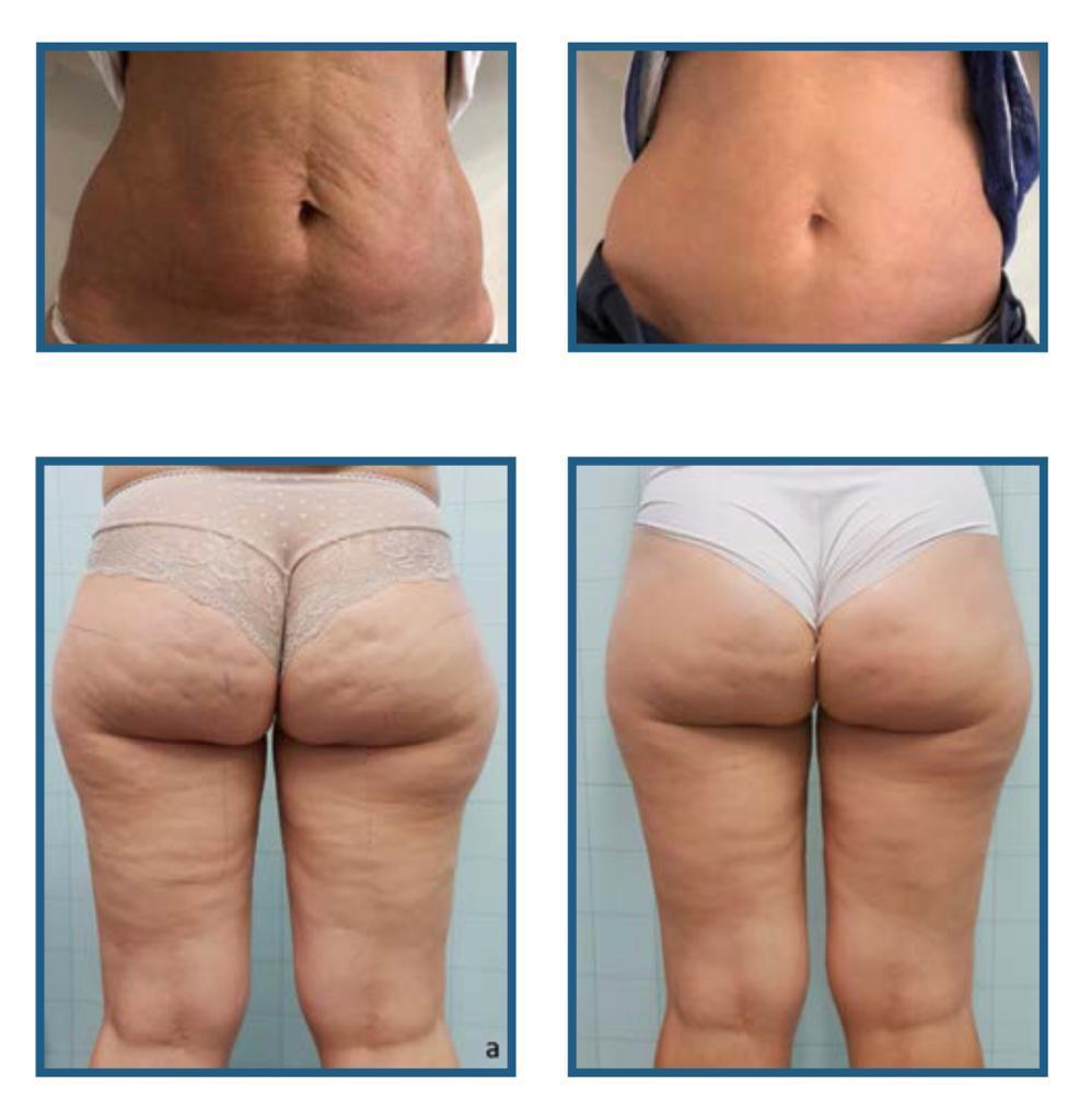 قبل و بعد درمان سلولیت