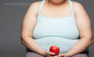 التغذية في تكميم المعدة