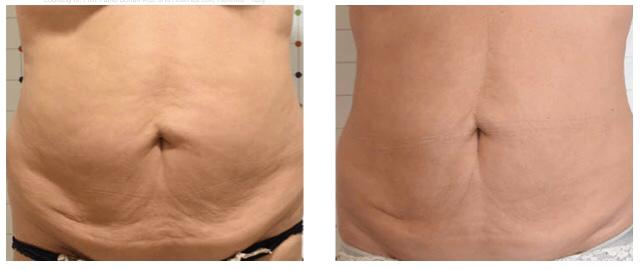 قبل و بعد سفت کردن پوست