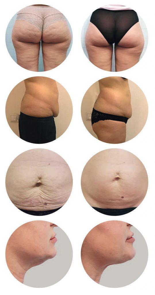 قبل و بعد درمان با دستگاه لاغری