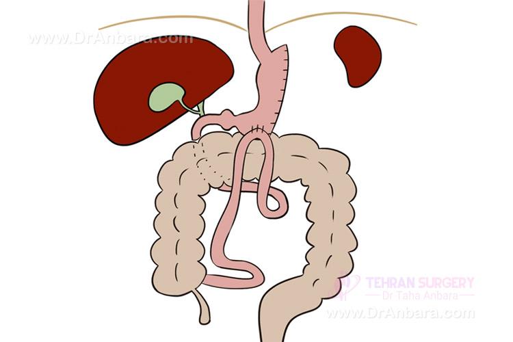 جراحة ساسج المعدة