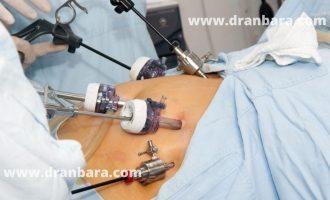جراحة متلازمة الأيض